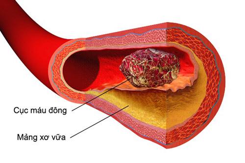 Cục máu đông chặn mạch máu tại nơi xơ vữa