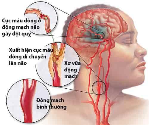 Đột quỵ và những dấu hiệu bạn nên biết