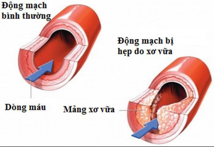 Hình ảnh động mạch  bị xơ vữa và động mạch thường