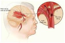 Tai biến mạch máu não và những hậu quả nặng nề cho người bệnh, gia đình và xã hội