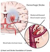 Kết quả nghiên cứu lâm sàng, điều trị 63 trường hợp
