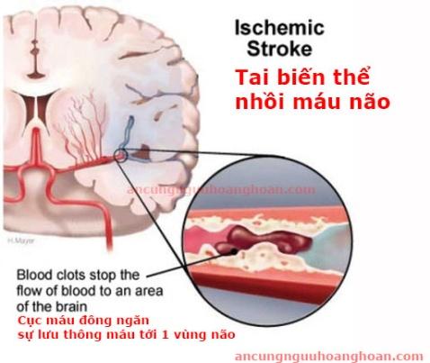 Điều trị an cung rùa vàng trong bệnh Tai Biến Mạch Máu Não