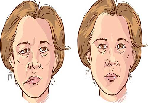 Điều trị liệt 7 ngoại biên bằng Y học cổ truyền